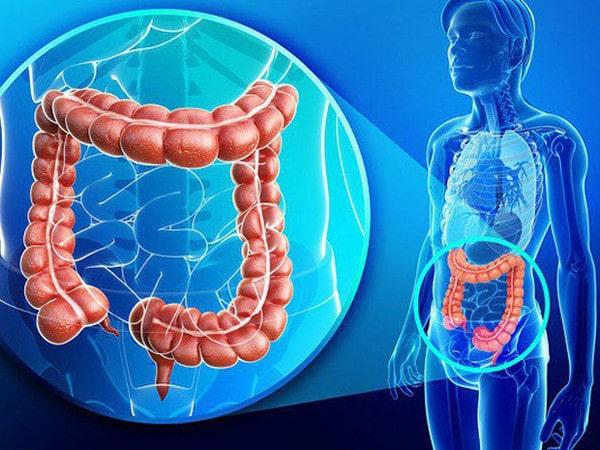 Ung thư đại tràng: Nguyên nhân, dấu hiệu, chẩn đoán