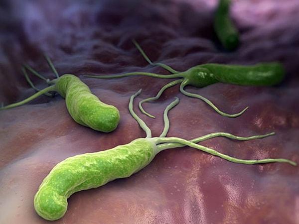 Vi khuẩn HP là gì - Làm thế nào để chữa khỏi căn bệnh này?