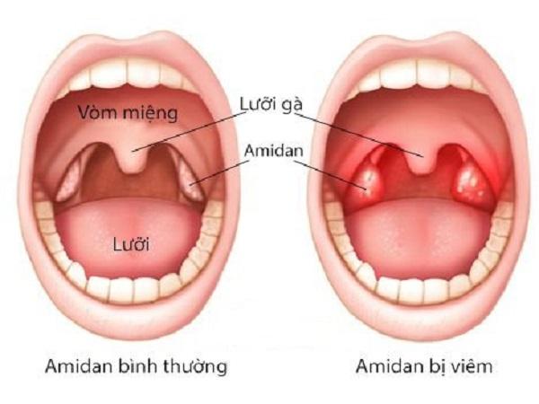 Dấu hiệu nhận biết viêm amidam và cách điều trị?