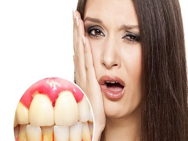Nguyên nhân chảy máu chân răng và cách chữa trị?