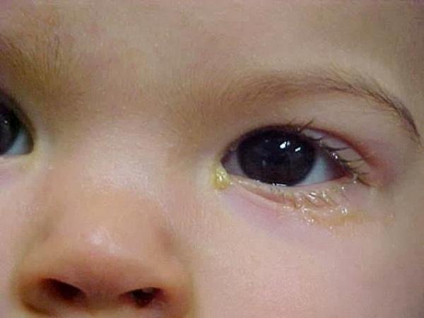 Tắc tuyến lệ ở trẻ sơ sinh: dấu hiệu nhận biết và cách điều trị