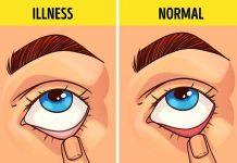 7 bài kiểm tra dưới đây đánh giá chuẩn xác tình hình sức khỏe của bạn