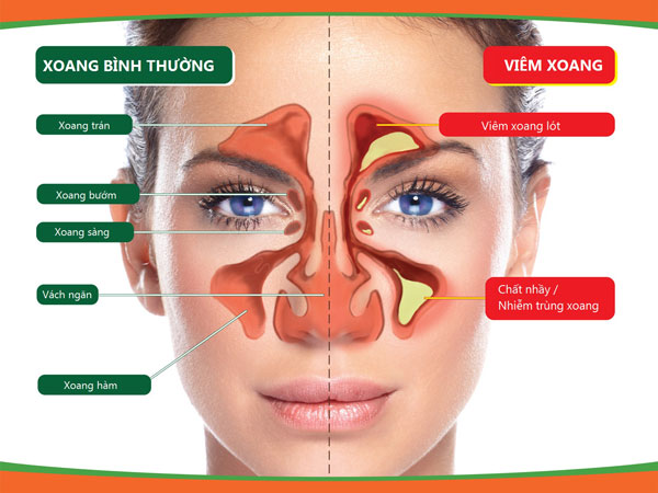 Nguyên nhân và cách chữa viêm xoang hiệu quả